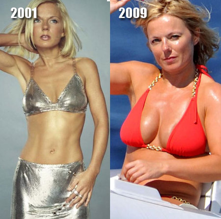 geri-halliwell-implants