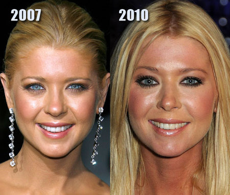 tara-reid-new-nose-eyes