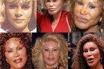 Bad plastic surgeries celebrities