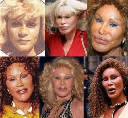 Bad plastic surgeries celebrities